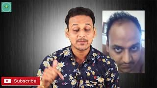 HAIR TRANSPLANT| 5 Reasons Your Hair Transplant Will Fail For Sure| A Must Watch